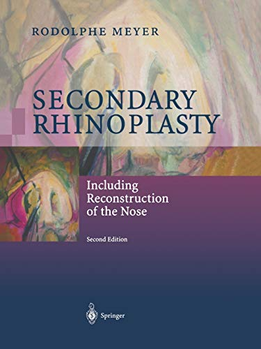 9783642630132: Secondary Rhinoplasty: Including Reconstruction of the Nose