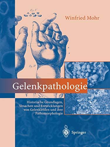 9783642630156: Gelenkpathologie: Historische Grundlagen, Ursachen Und Entwicklungen Von Gelenkleiden Und Ihre Pathomorphologie