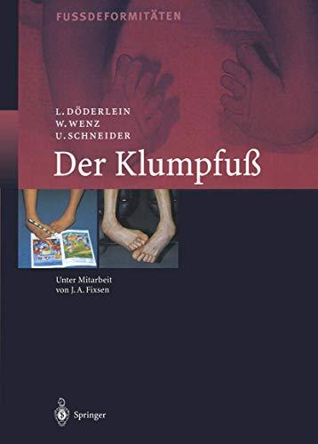 Der Klumpfuss: Erscheinungsformen und Behandlungsprinzipien jeden Alters. Differentialdiagnose und ...