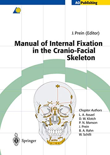 9783642637322: Manual of Internal Fixation in the Cranio-Facial Skeleton: Techniques Recommended by the AO/ASIF Maxillofacial Group