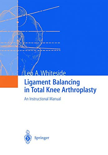 Ligament Balancing in Total Knee Arthroplasty: An: Whiteside, Leo A.