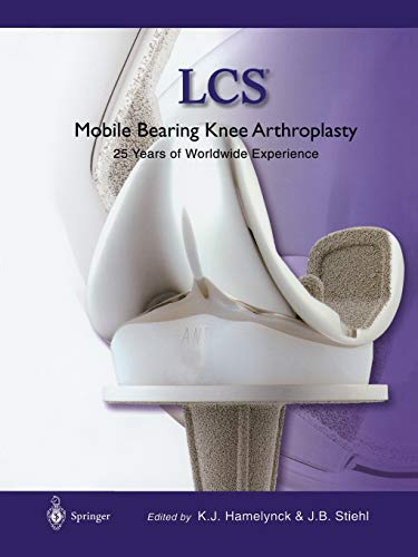 9783642639449: LCS Mobile Bearing Knee Arthroplasty: A 25 Years Worldwide Review
