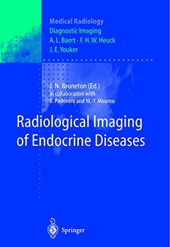 9783642642005: Radiological Imaging of Endocrine Diseases