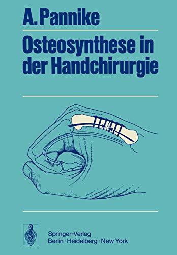 9783642654282: Osteosynthese in der Handchirurgie