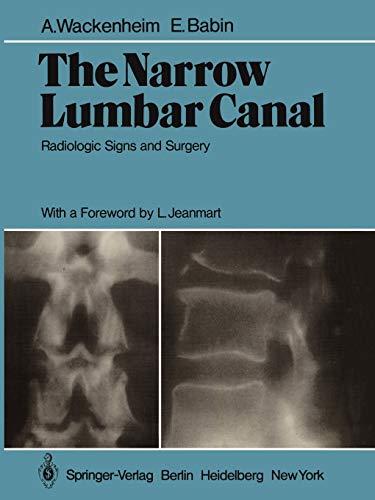 The Narrow Lumbar Canal: Radiologic Signs and Surgery: A. Wackenheim