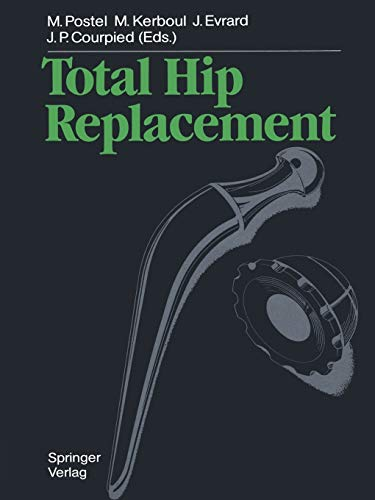 9783642695995: Total Hip Replacement