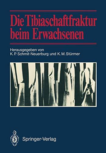9783642715600: Die Tibiaschaftfraktur beim Erwachsenen: Symposium anläßlich des 10jährigen Bestehens der Abteilung für Unfallchirurgie am Klinikum Essen, 1./2. Februar 1985 in Essen