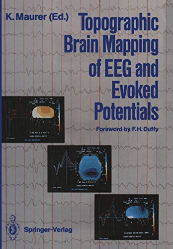 9783642726606: Topographic Brain Mapping of EEG and Evoked Potentials