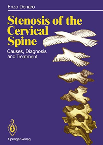 9783642762055: Stenosis of the Cervical Spine: Causes, Diagnosis and Treatment