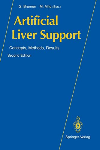 Artificial Liver Support: Concepts, Methods, Results: Brunner, G. [Editor];