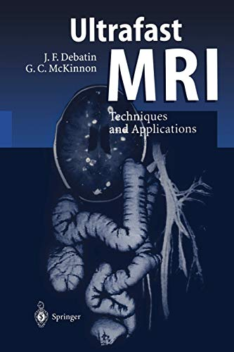 9783642803864: Ultrafast MRI: Techniques and Applications