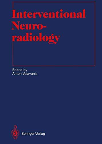 9783642844362: Interventional Neuroradiology (Medical Radiology)