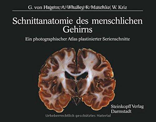 9783642936715: Schnittanatomie Des Menschlichen Gehirns: Ein ...