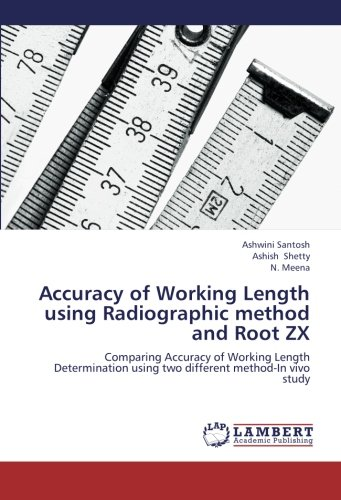9783659141027: Accuracy of Working Length using Radiographic method and Root ZX: Comparing Accuracy of Working Length Determination using two different method-In vivo study