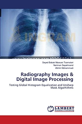 Radiography Images & Digital Image Processing: Seyed Babak Moosavi Toomatari