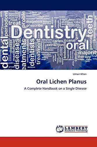Oral Lichen Planus: UMAIR KHAN