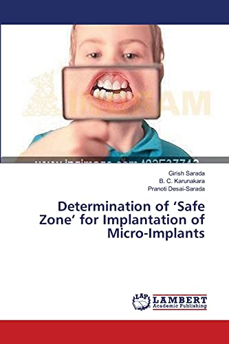 9783659374968: Determination of 'Safe Zone' for Implantation of Micro-Implants