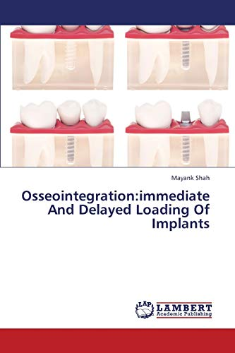 Osseointegration: Immediate and Delayed Loading of Implants: Mayank Shah