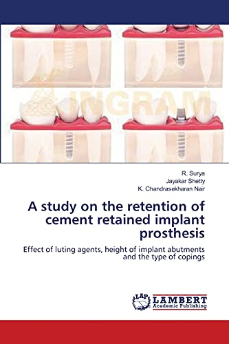 A Study on the Retention of Cement Retained Implant Prosthesis: K. Chandrasekharan Nair
