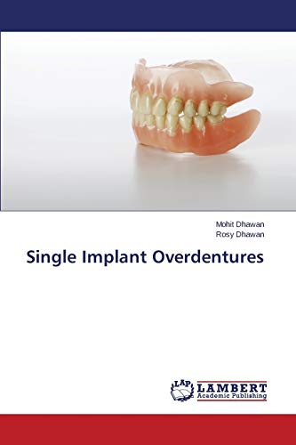 9783659473463: Single Implant Overdentures