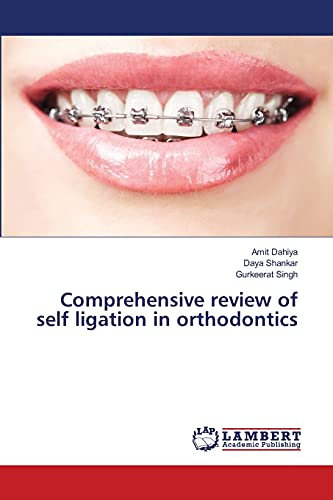 Comprehensive review of self ligation in orthodontics: Amit Dahiya