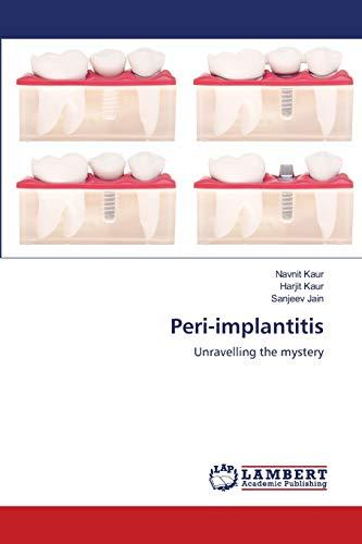 9783659744341: Peri-implantitis