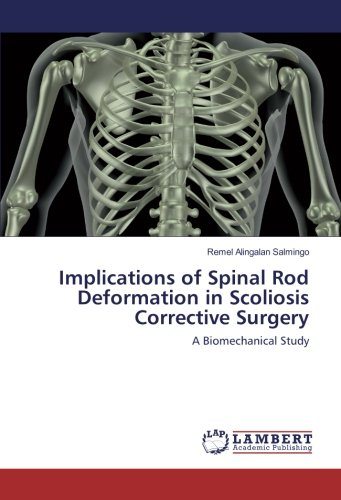 9783659915437: Implications of Spinal Rod Deformation in Scoliosis Corrective Surgery: A Biomechanical Study