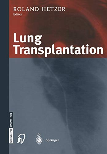 9783662046791: Lung Transplantation