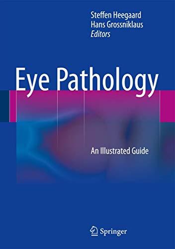 Eye Pathology: Steffen Heegaard
