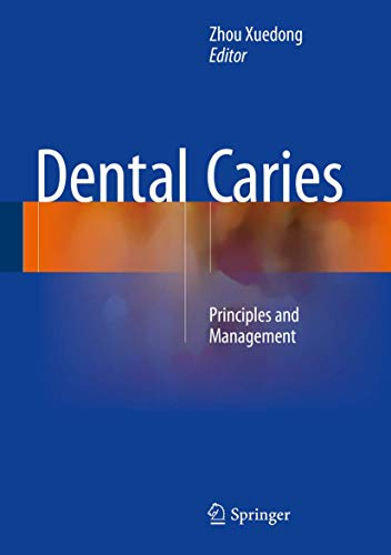 9783662474495: Dental Caries: Principles and Management