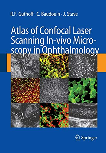 9783662500613: Atlas of Confocal Laser Scanning In-vivo Microscopy in Ophthalmology