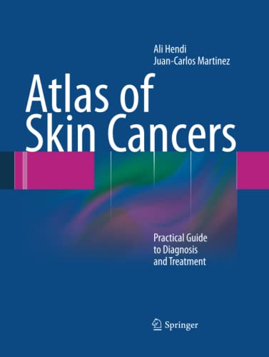 9783662501658: Atlas of Skin Cancers: Practical Guide to Diagnosis and Treatment