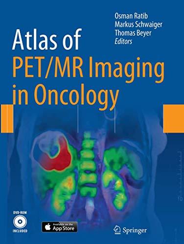 9783662509951: Atlas of PET/MR Imaging in Oncology
