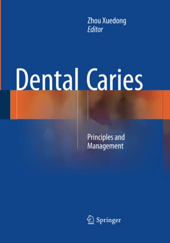 9783662510452: Dental Caries: Principles and Management