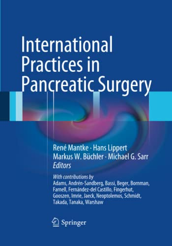 9783662518168: International Practices in Pancreatic Surgery