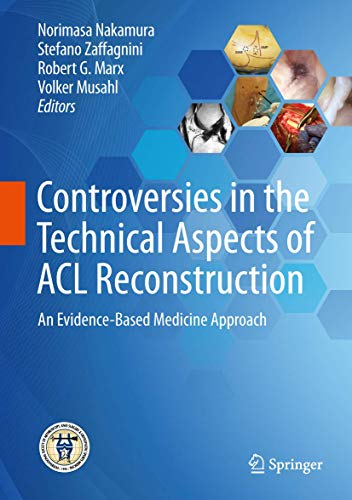9783662527405: Controversies in the Technical Aspects of Acl Reconstruction: An Evidence-based Medicine Approach