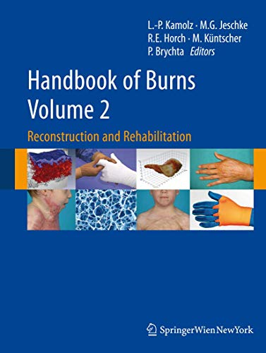 9783709103142: Handbook of Burns Volume 2: Reconstruction and Rehabilitation
