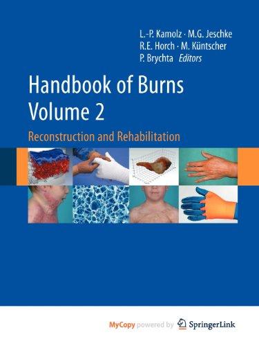 9783709103166: Handbook of Burns Volume 2: Reconstruction and Rehabilitation