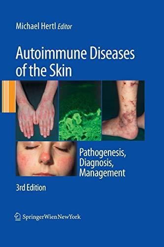 9783709119051: Autoimmune Diseases of the Skin: Pathogenesis, Diagnosis, Management