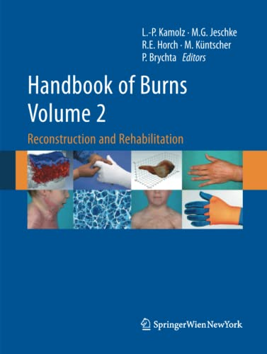 9783709119211: Handbook of Burns Volume 2: Reconstruction and Rehabilitation
