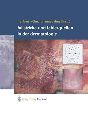 9783709171974: Fallstricke und Fehlerquellen in der Dermatologie (German Edition)