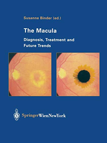 9783709179871: The Macula: Diagnosis, Treatment and Future Trends