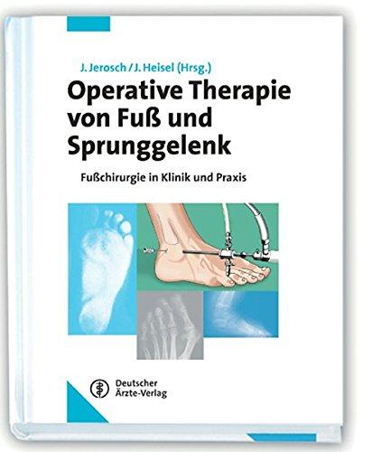 9783769104882: Operative Therapie von Fuß und Sprunggelenk: Fußchirurgie in Klinik und Praxis