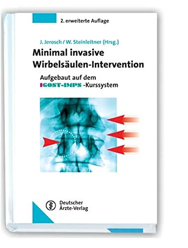 Minimal invasive Wirbelsäulen-Intervention: M. Ahrens