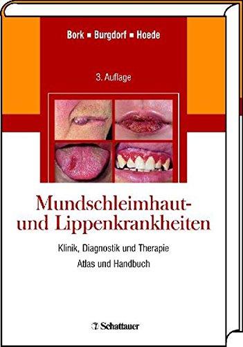 Mundschleimhaut- und Lippenkrankheiten: Konrad Bork