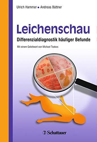 Leichenschau: Ulrich Hammer