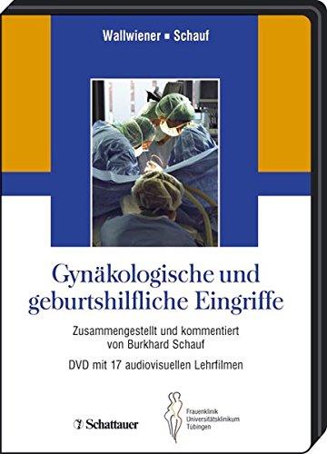9783794551453: Gynäkologische und geburtshilfliche Eingriffe. DVD-Video