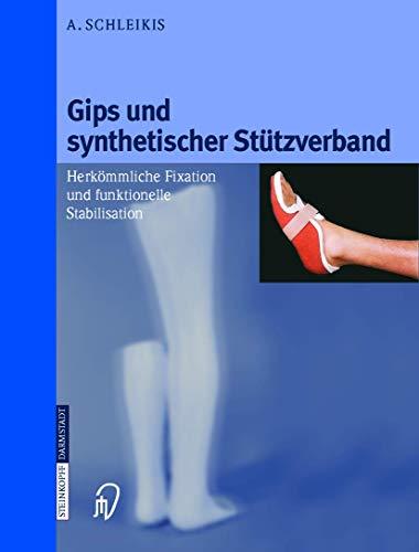 9783798512108: Gips und synthetischer Stützverband: Herkömmliche Fixation und funktionelle Stabilisation (German Edition)