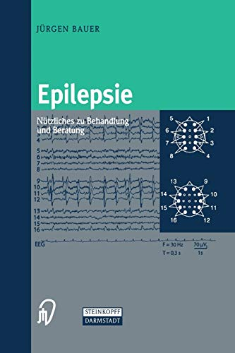 9783798513570: Epilepsie: Nützliches zu Behandlung und Beratung