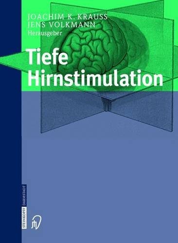 9783798514126: Tiefe Hirnstimulation (German Edition)